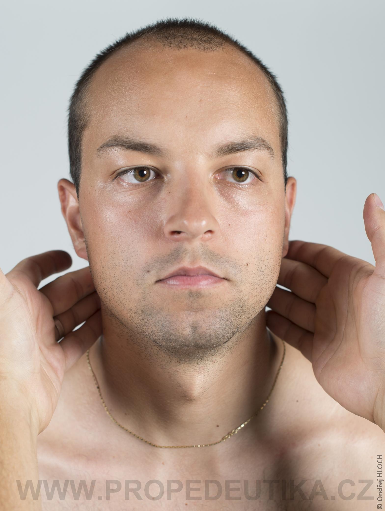 hypofunkce štítné žlázy